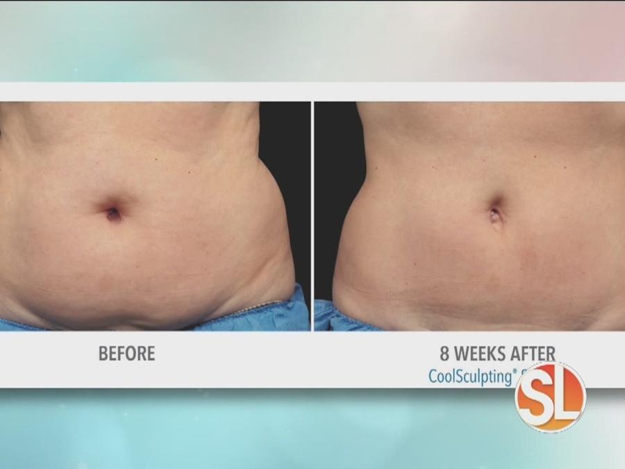 VeinMed Solutions offers Coolsculpting procedure for bikini season