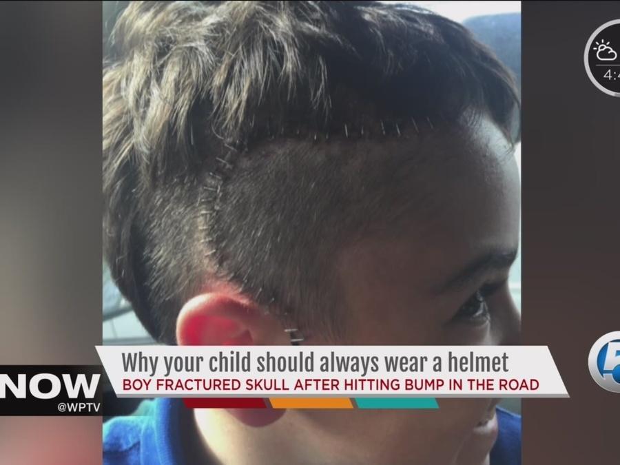 Why your child should always wear a helmet when biking