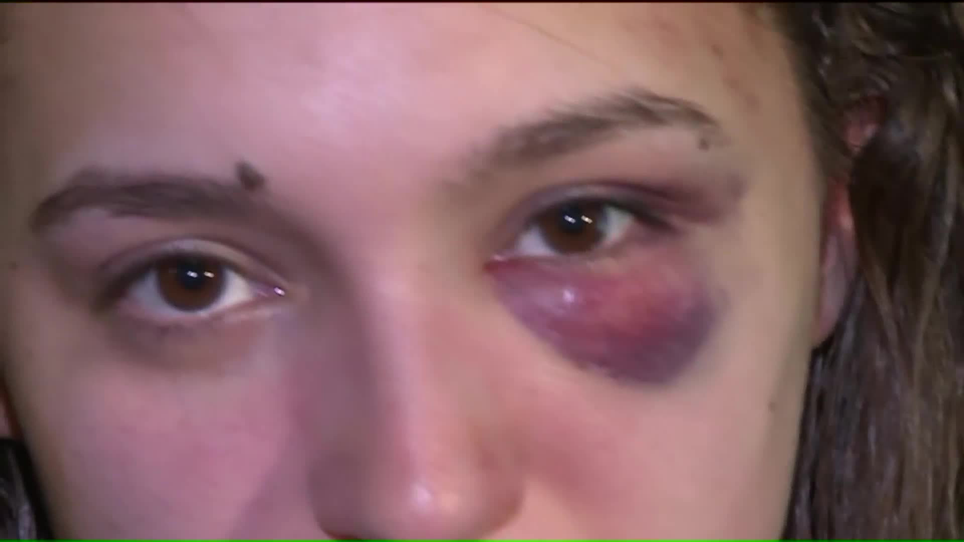 Woman Brutally Beaten On Train Says Passengers Just Watched It Happen