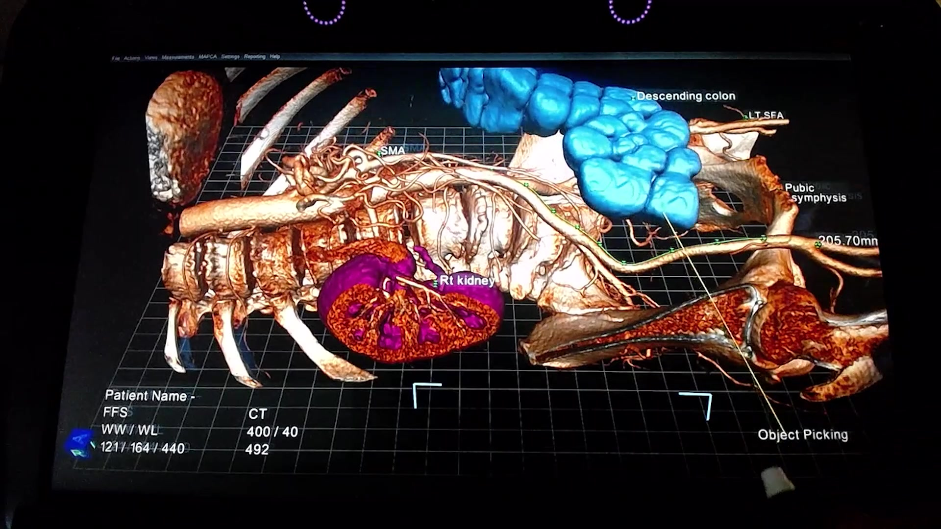 Echo Pixel's 3D Visualization of CT Scans