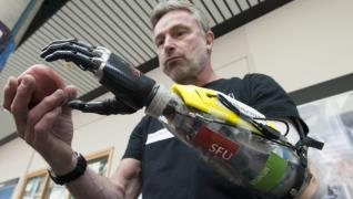 Paralympic athlete can 'feel' fingers move with new bionic hand