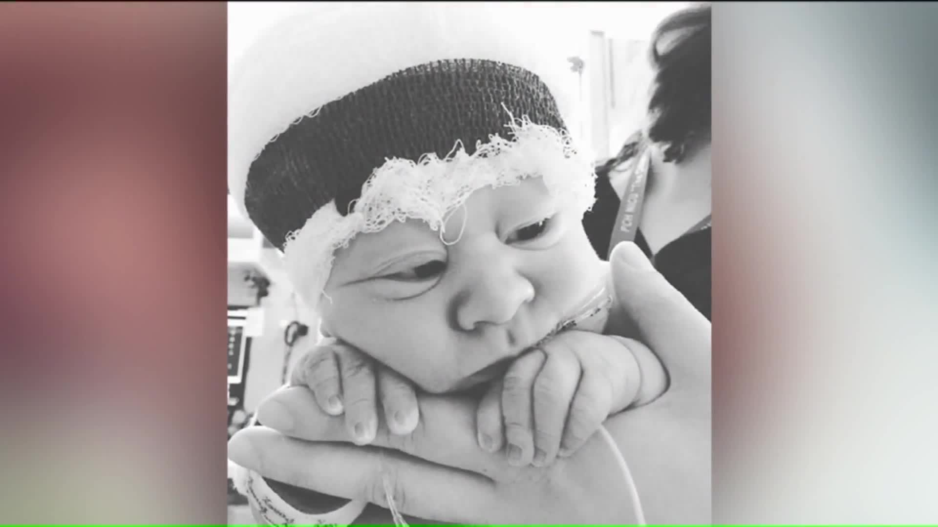 Infant Born Without Portion of Skull Defies All Odds