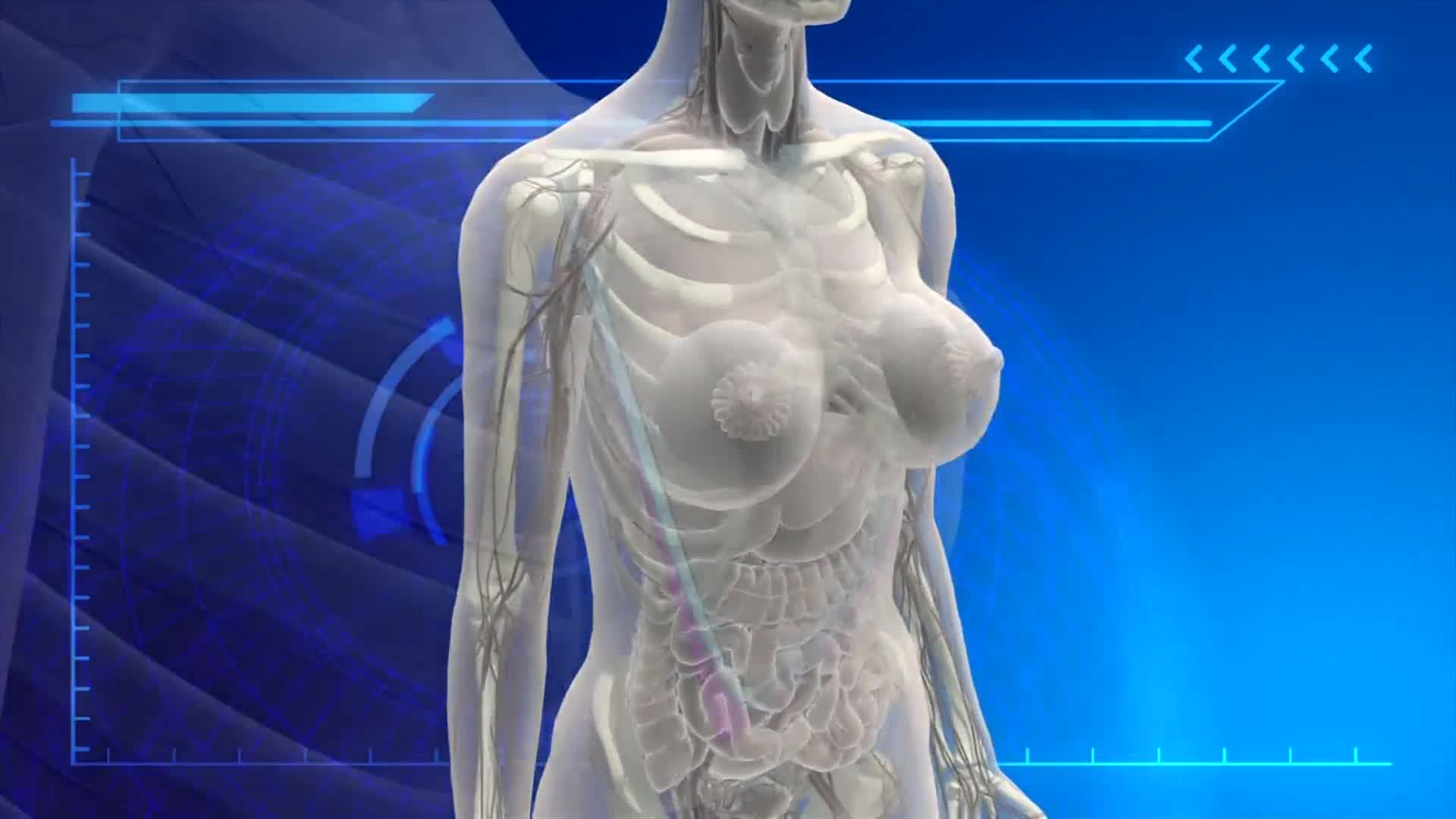 US-BREAST-IMPLANT-CANCER
