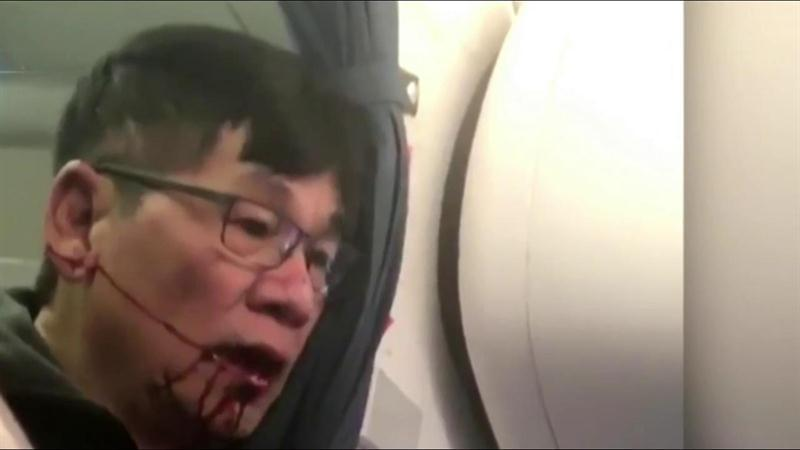 New Video Shows United Passenger Before Dragging Incident