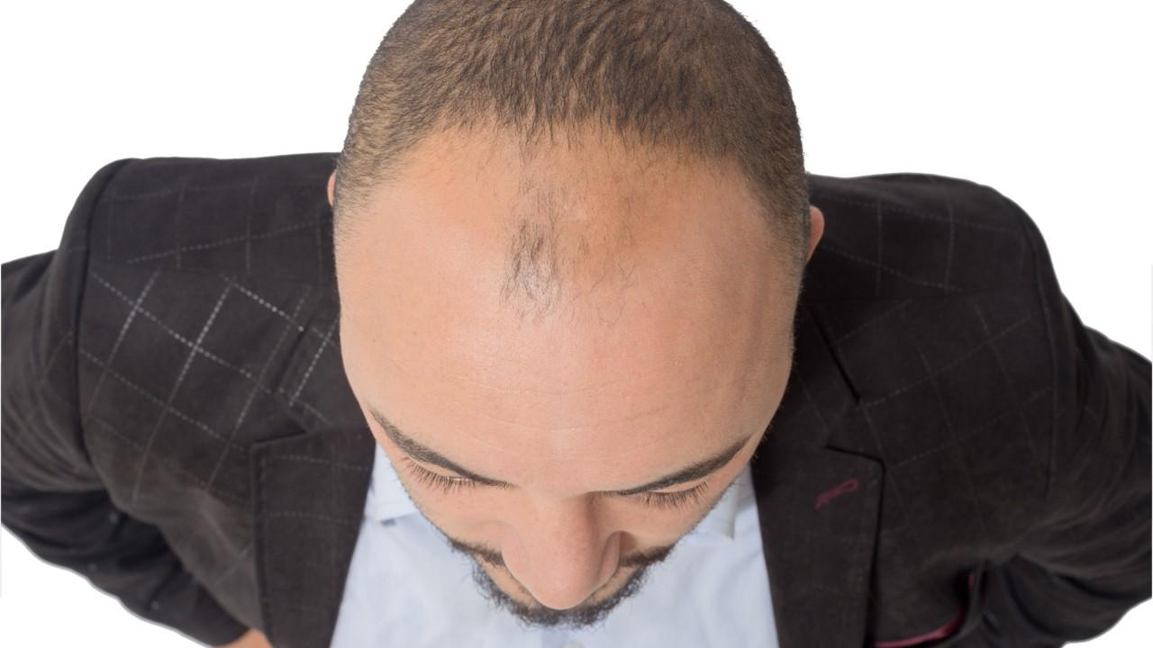 What to Do About Shedding Hair