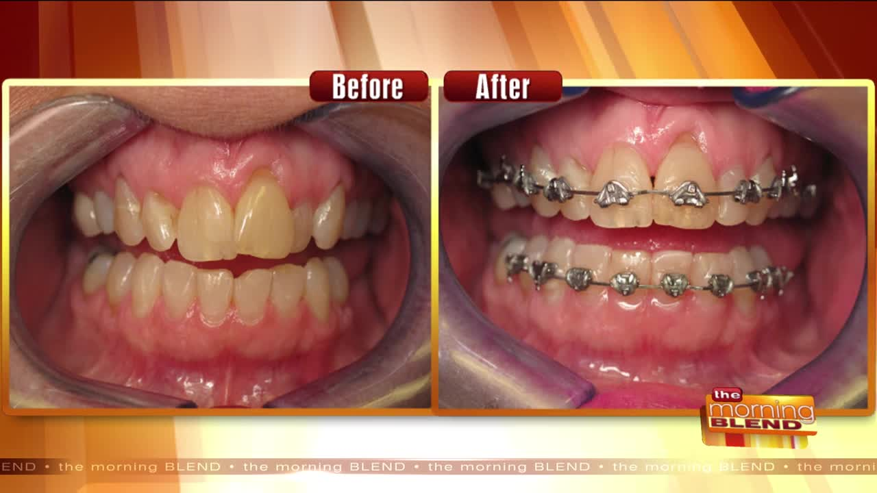 A Safe & Affordable Way to Straighten Teeth Fast