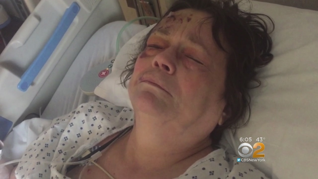 Exclusive: Grandmother Hurt In Hit-And-Run