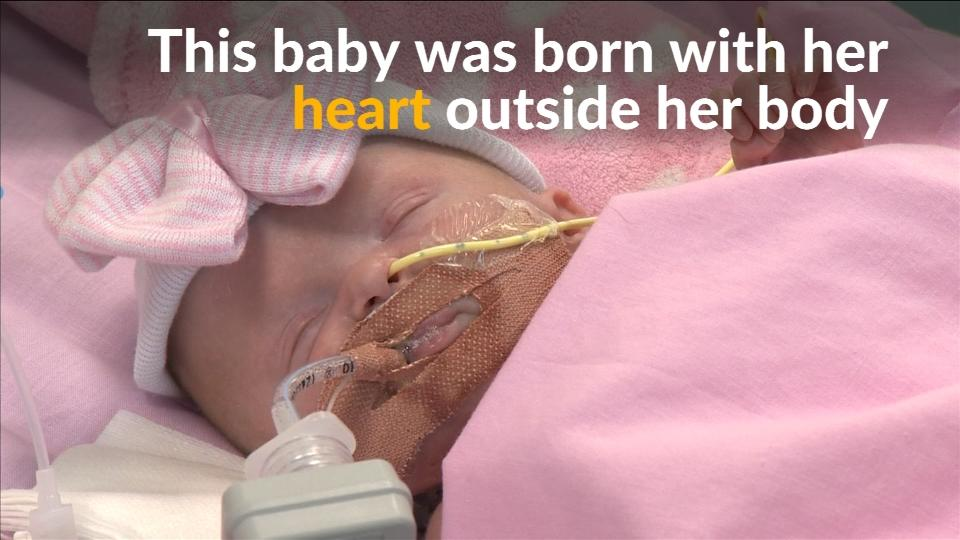 U.K. baby born with heart outside body survives surgery