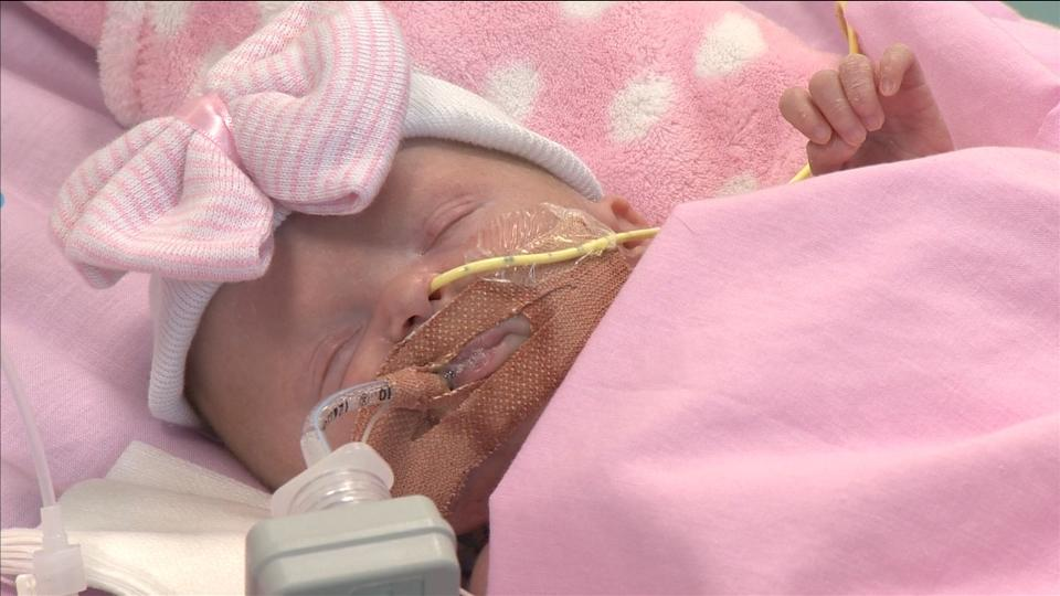 Newborn with heart outside chest survives surgery