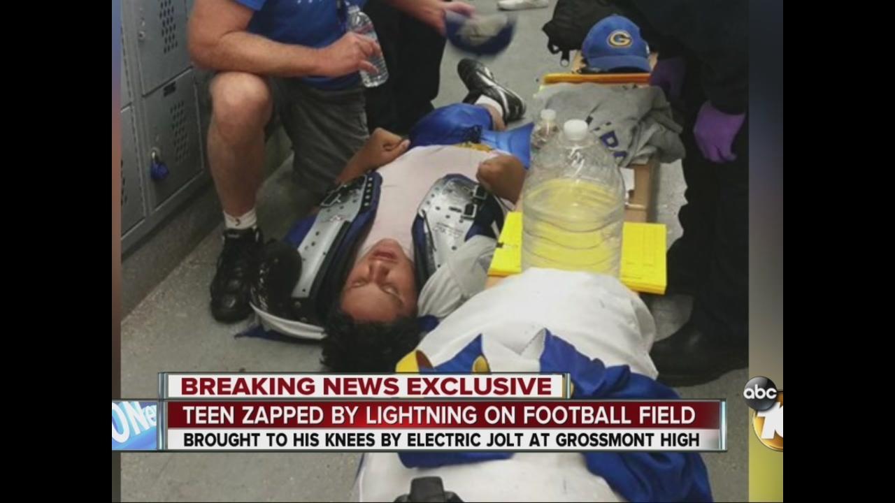 Lightning jolt sends Grossmont High teen to the ER - 10News.com ...