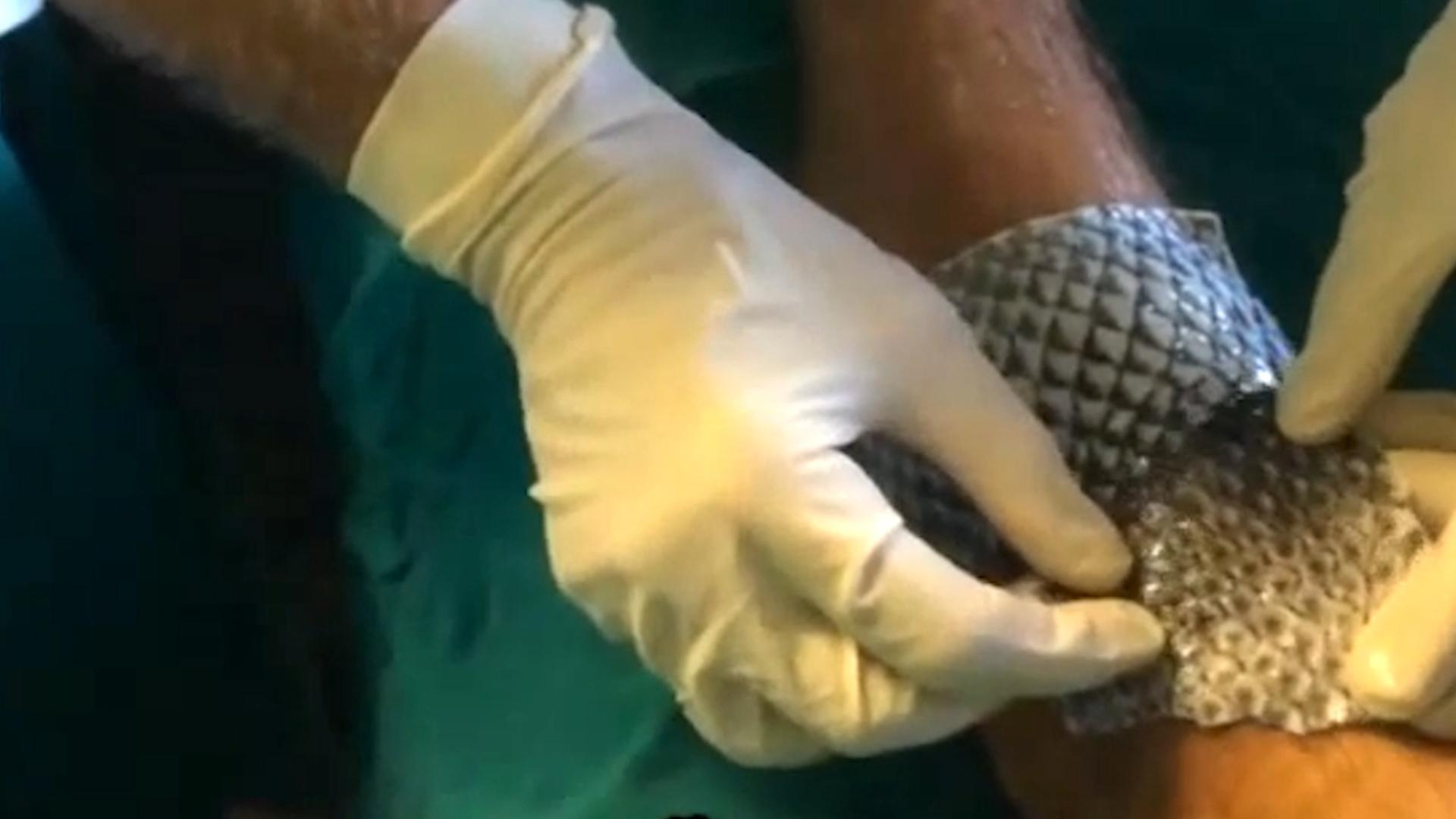 Fish skin is being used to treat burns aol uk living for Fish skin for burns