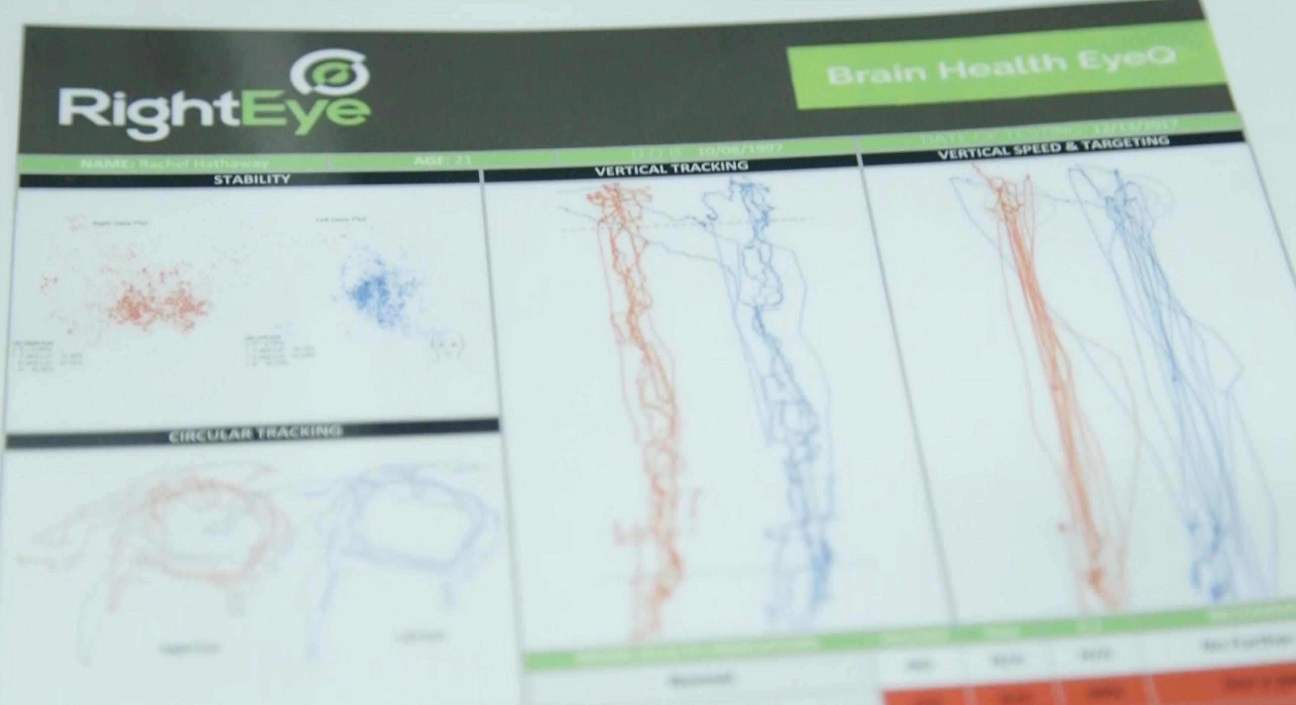 RightEye eye-tracking tests for health