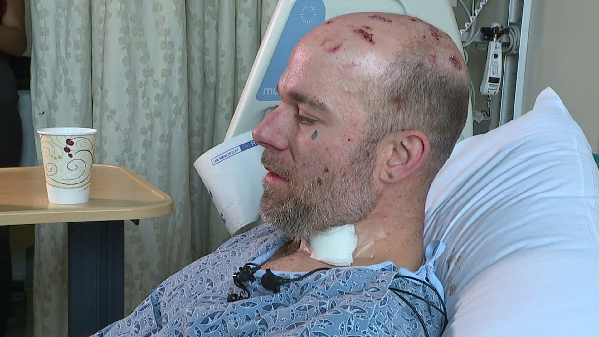 Transient Man Attacked with Machete, Chain in Vicious Assault
