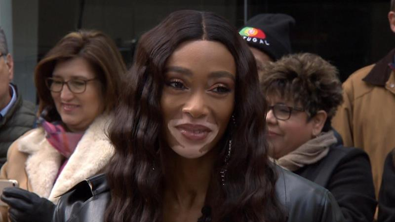 Model Winnie Harlow Faces Backlash After Complaining About Flying In Coach