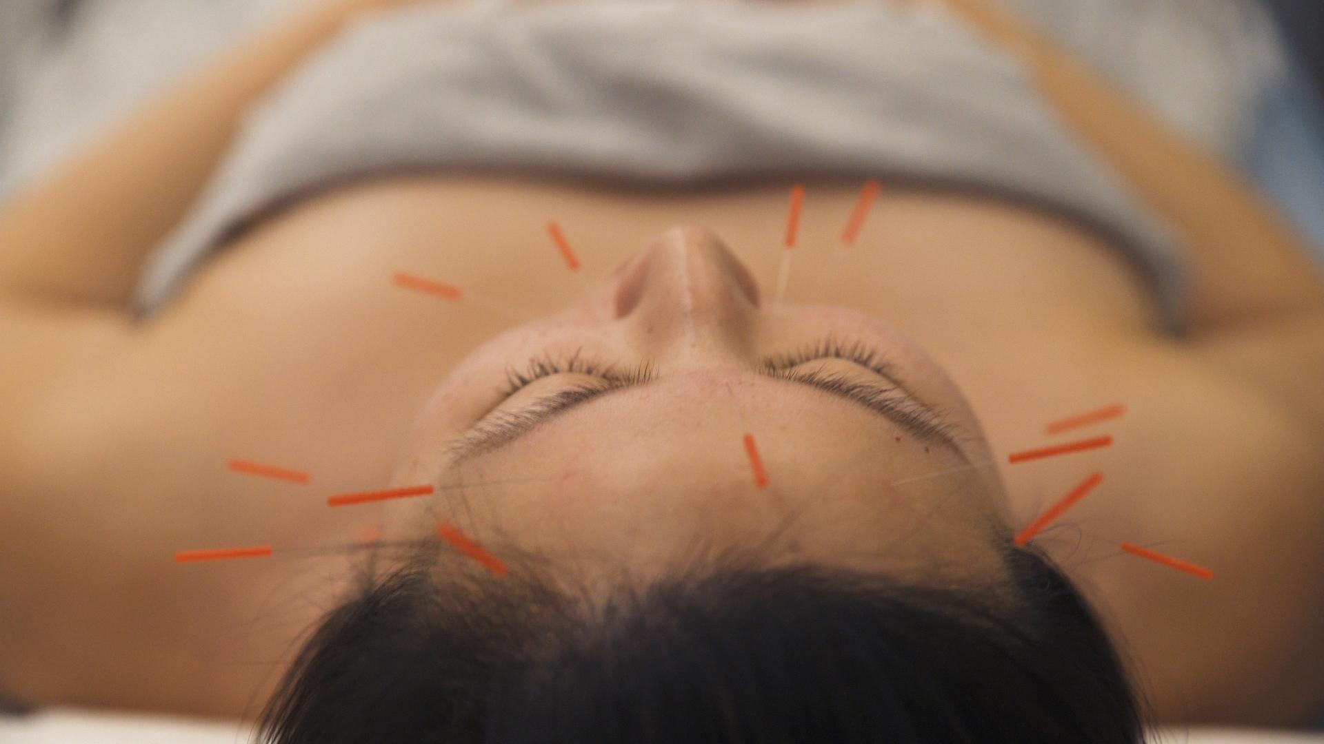 Is Facial Acupuncture The New Botox?