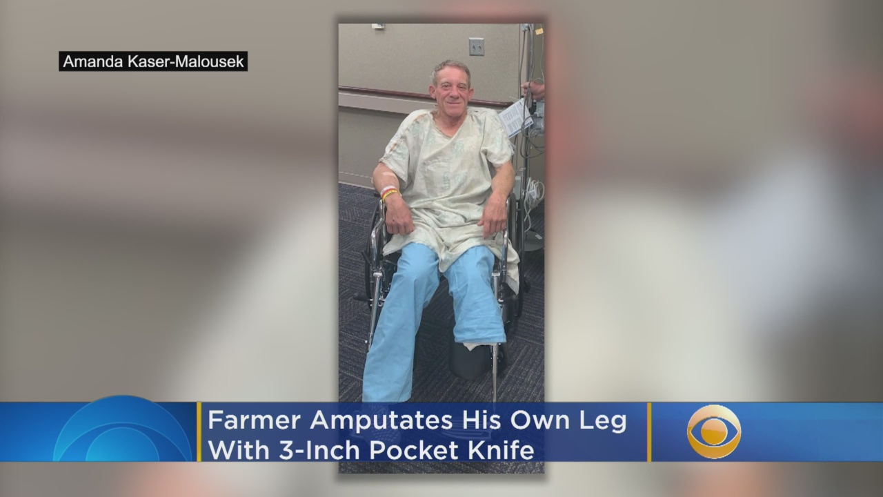 Farmer Cuts Off Own Leg With Pocket Knife To Save His Life