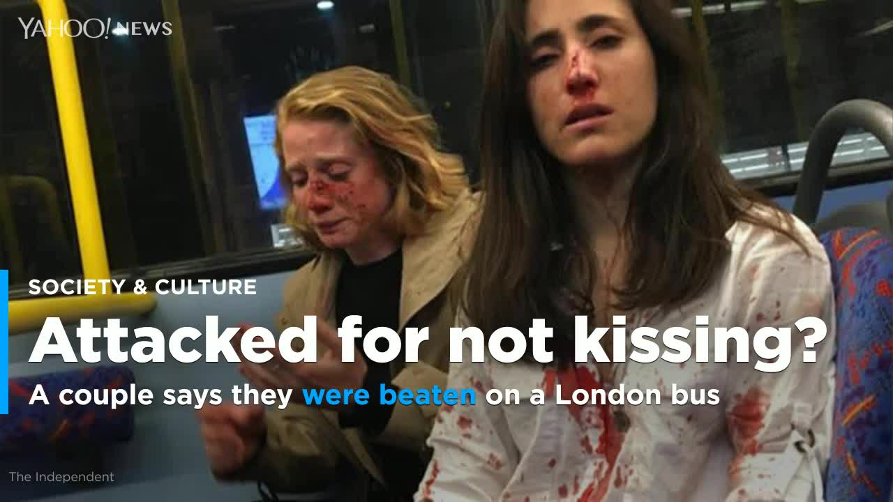 Homophobic Attack Victim Condemns Response To Photos Of Her