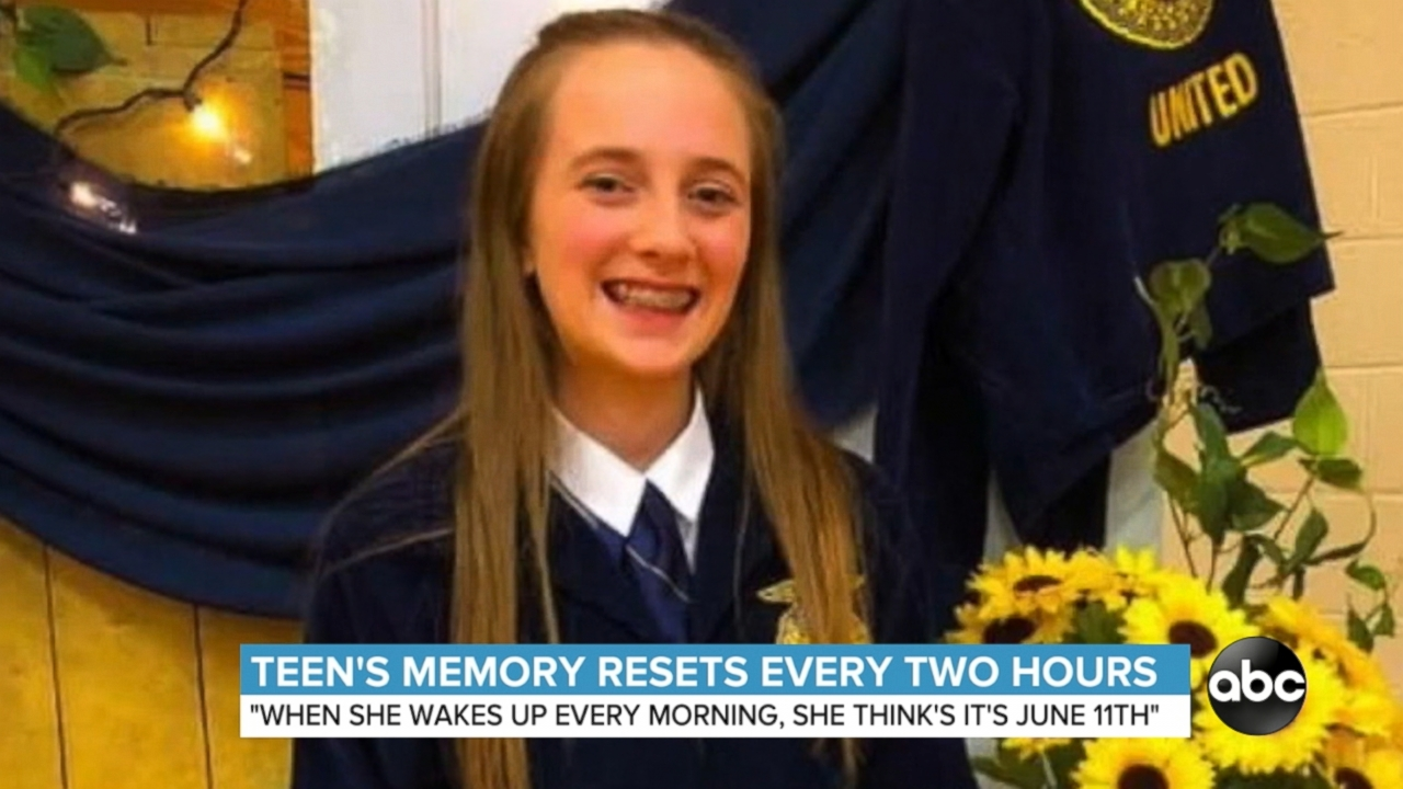 Illinois teen's memory resets every 2 hours and doctors have no idea why