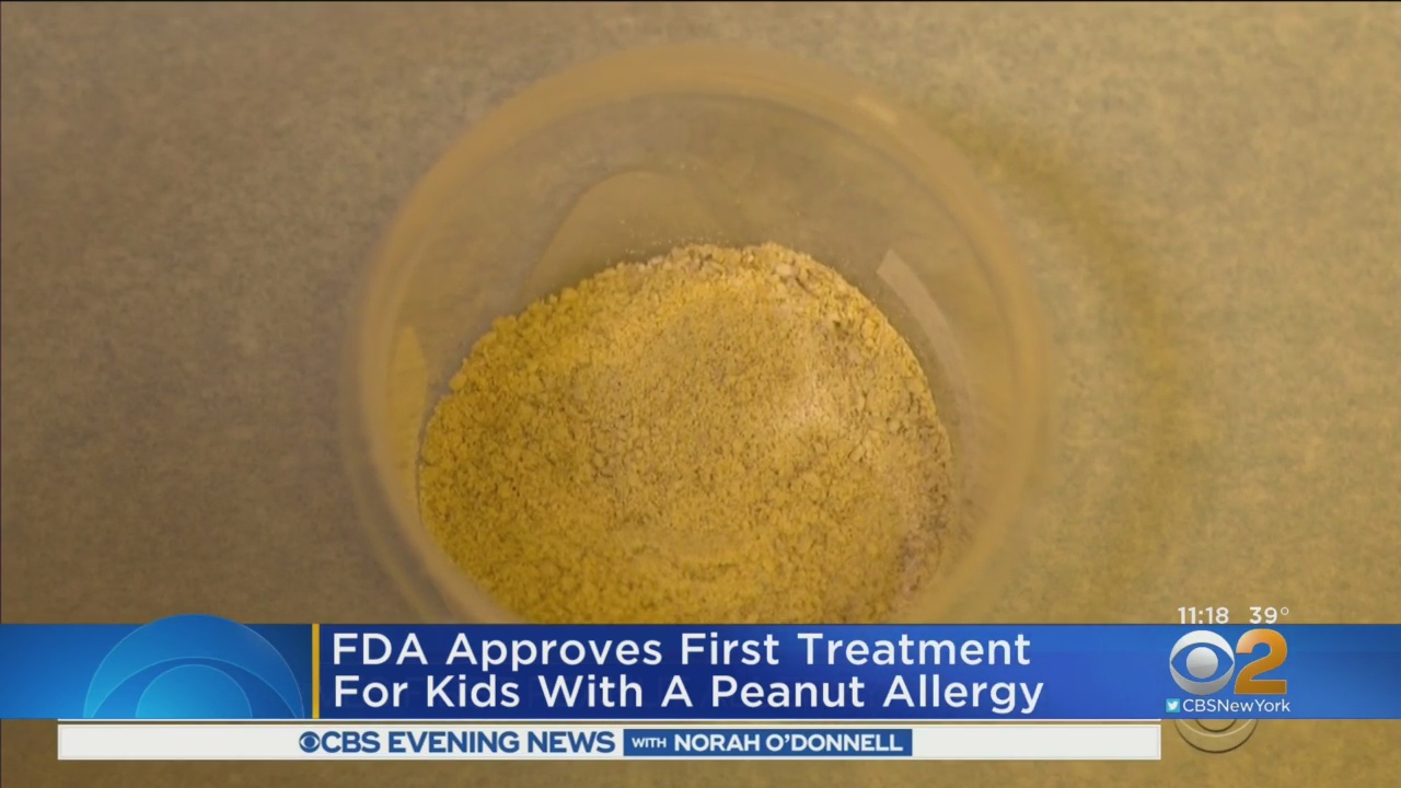 FDA Gives Treatment For Kids With Peanut Allergies The Green Light