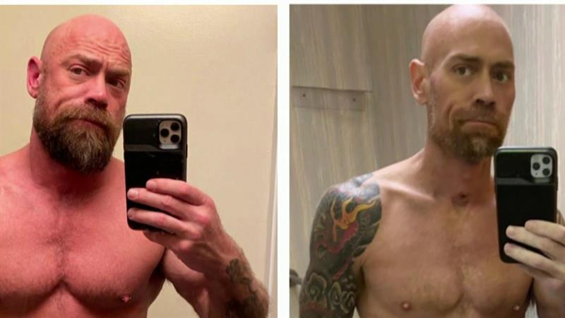 Nurse Who Survived COVID-19 Shares Jaw-Dropping Photo Of What It Did To His Body